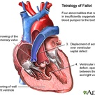Tetralogy of Fallot. 4 defects that cause cyanosis during baby's crying or feeding. Characterized by